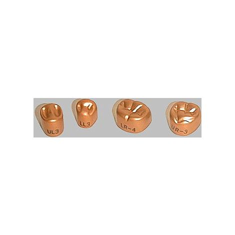 2nd Permanent Molar Temgold Anodized Aluminum Crowns Kit Pk/84