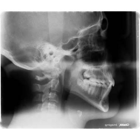 Cephlometric Film (Flow Dental)
