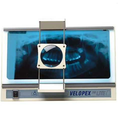 Hi-Lite Viewer (Velopex)