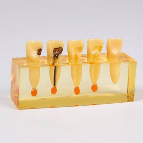 Demo Dent Partial - Anterior & Posterior (Hager)